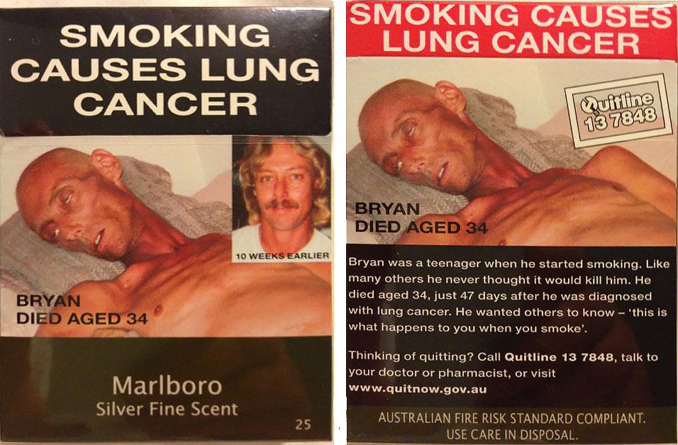 Курение — причина рака лёгких