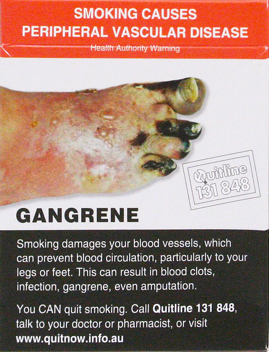 Курение — причина заболеваний периферических сосудов