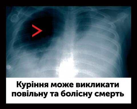 Смертельные заболевания
