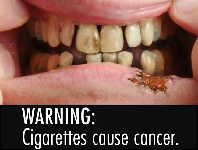 ВНИМАНИЕ: Сигареты вызывают рак